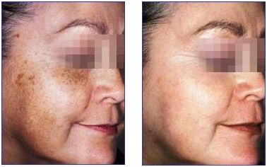 does hydroquinone work?